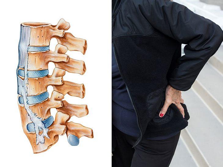Kann der rücken jeden tag in osteochondrose schmerzen
