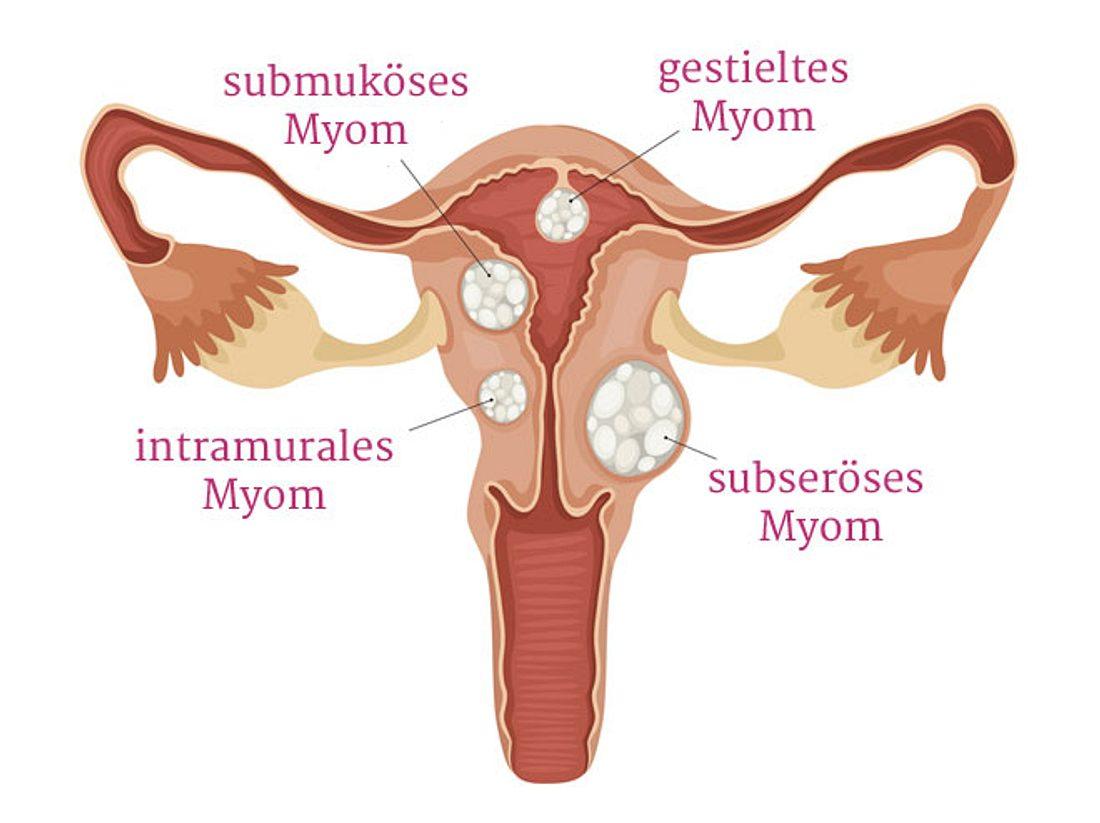 Myome: Das bedeutet die Diagnose