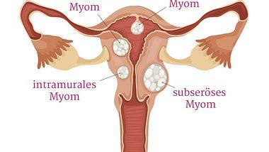 Wucherung an der Gebärmutter