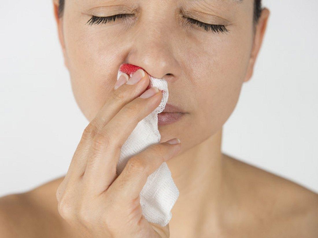 Mit diesen Tipps können Sie Nasenbluten stoppen.