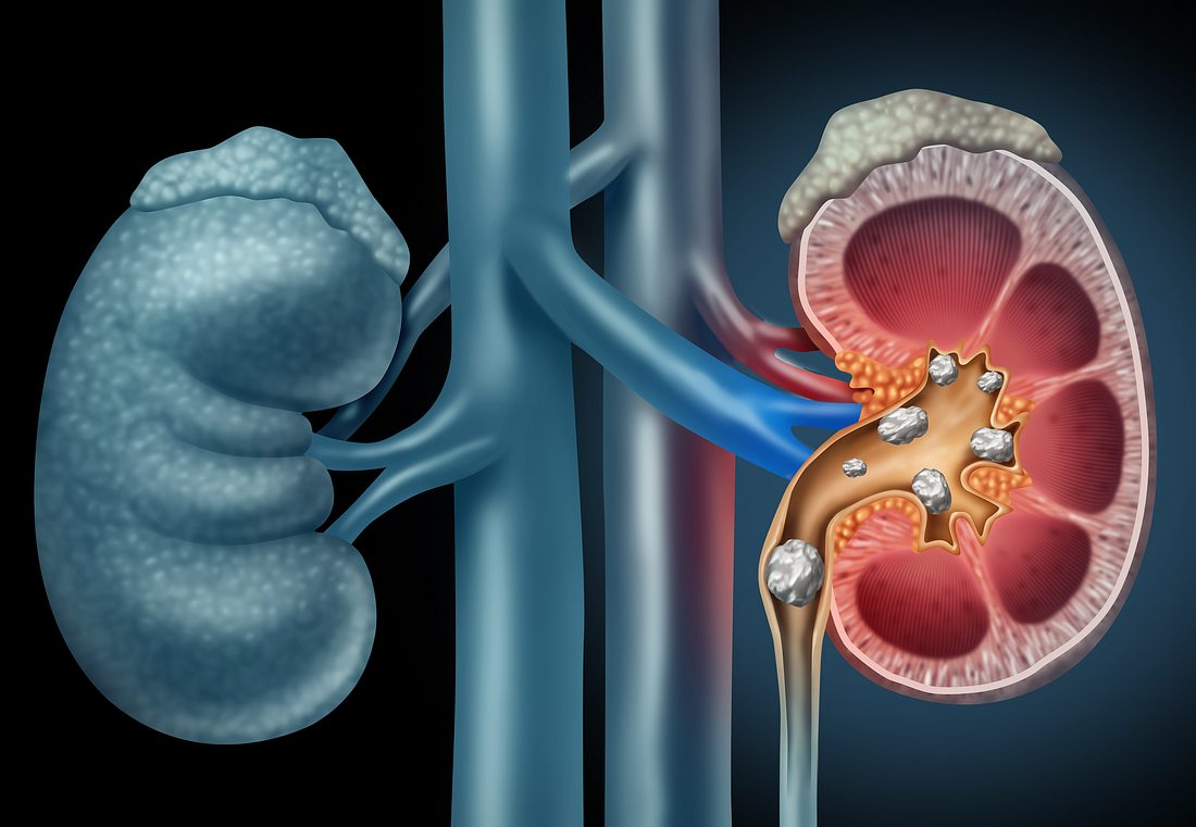 Nierensteine können starke, kolikartige Schmerzen auslösen.