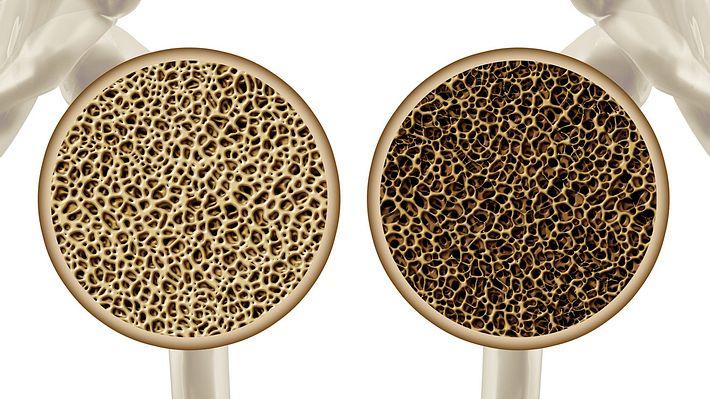 Osteoporose - Wenn die Knochen an Festigkeit verlieren - Foto: wildpixel / iStock