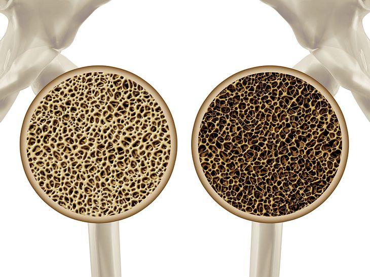 Osteoporose - Wenn die Knochen an Festigkeit verlieren