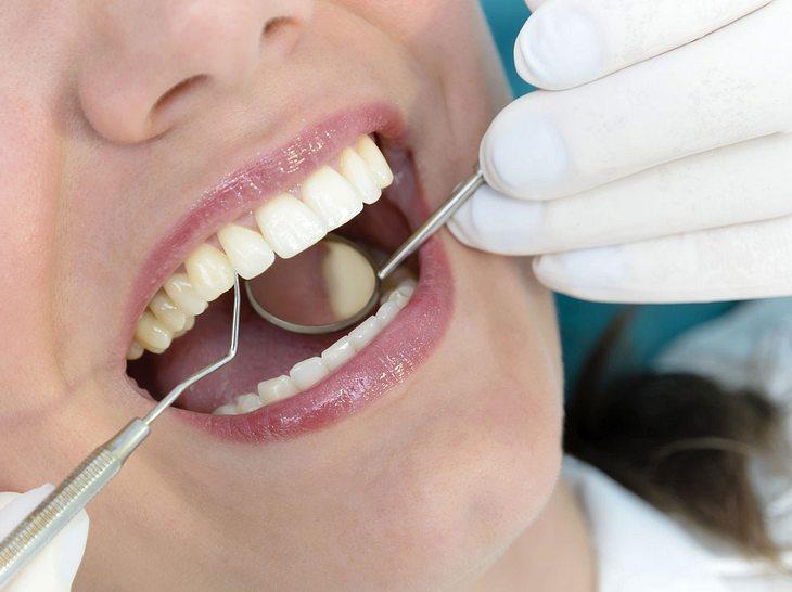 Forschern zufolge gibt es einen Zusammenhang zwischen einer Parodontitis und dem Risiko, an Krebs zu erkranken.