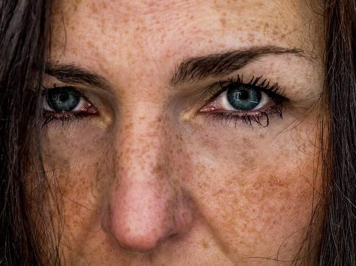 Braune Flecken Nach Laserbehandlung