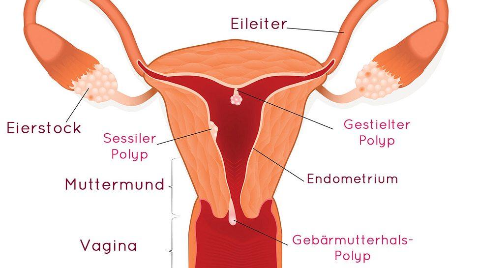 Polypen in der Gebärmutter