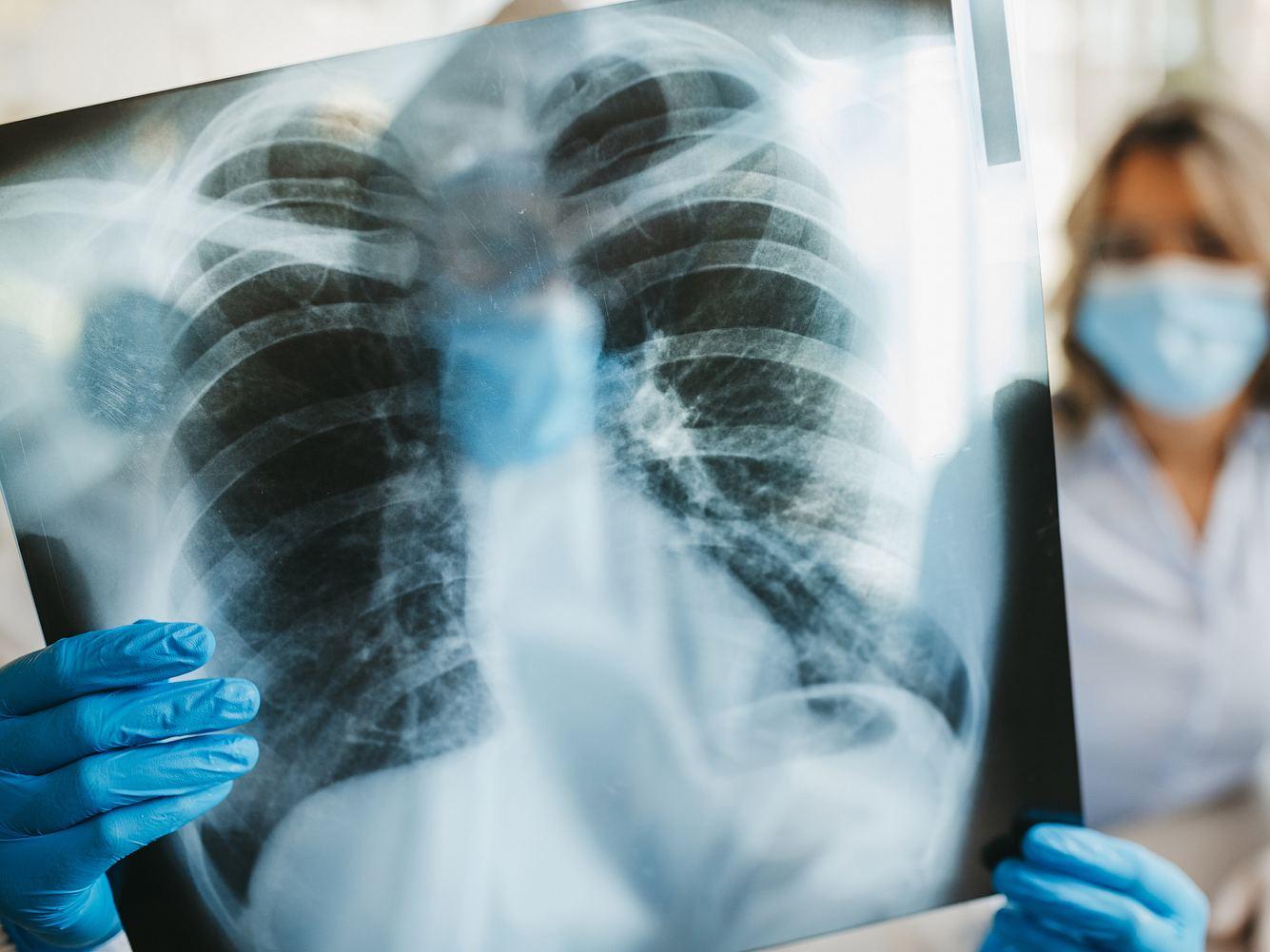 Zwei Personen betrachten eine Röntgenaufnahme der Lunge.