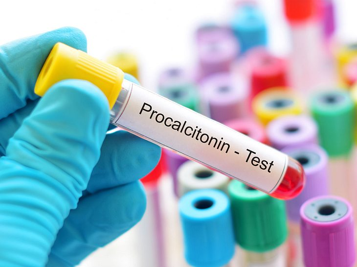 Procalcitonin-Test