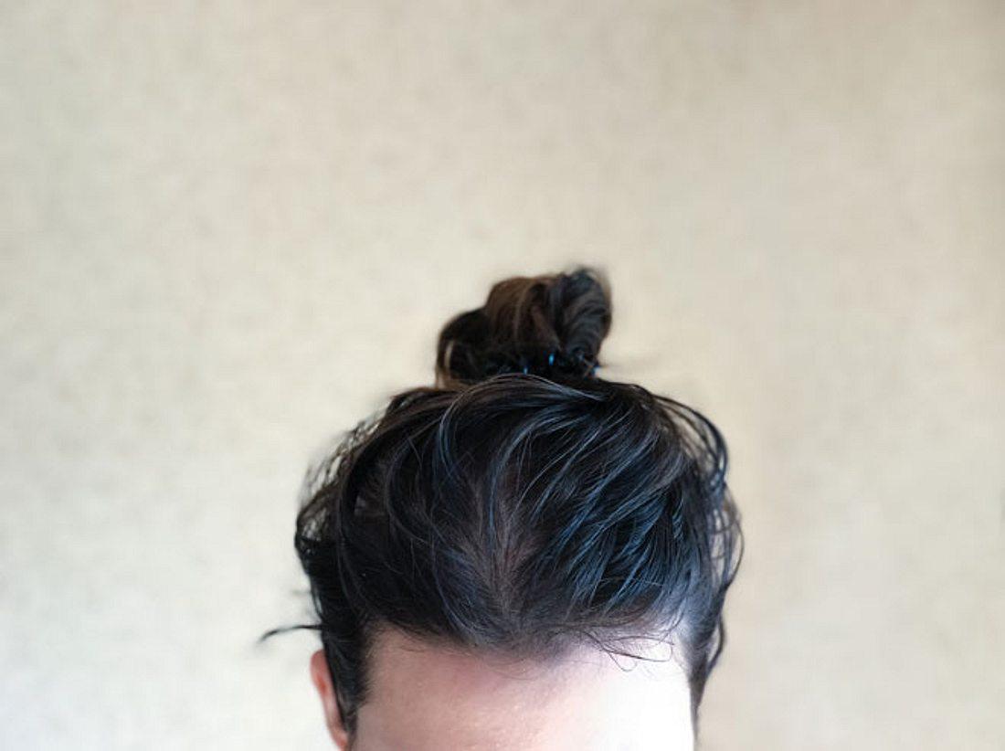Schuppenflechte auf der Kopfhaut