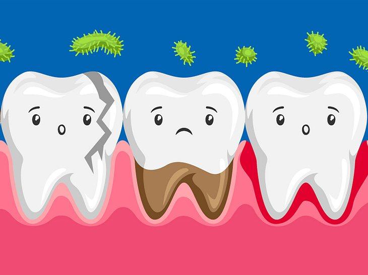 Sind schlechte Zähne vererbbar?