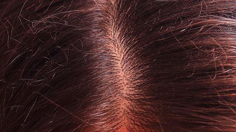 Sonnenbrand auf der Kopfhaut. - Foto: dimarik / iStock