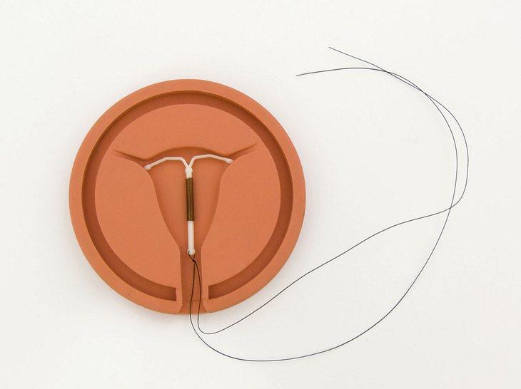 Hormonspirale: Harmlose Verhütungsmethode oder nicht?