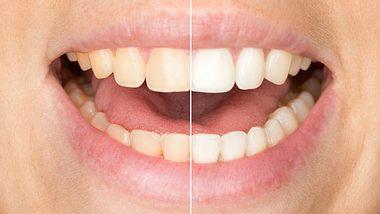 Diese Tipps pflegen die Zähne