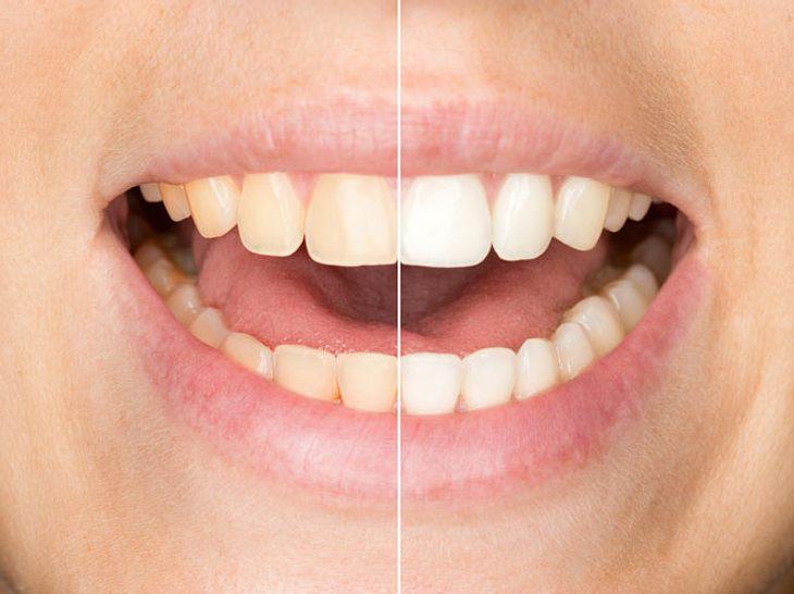 So bekommen Sie in jedem Alter strahlende Zähne