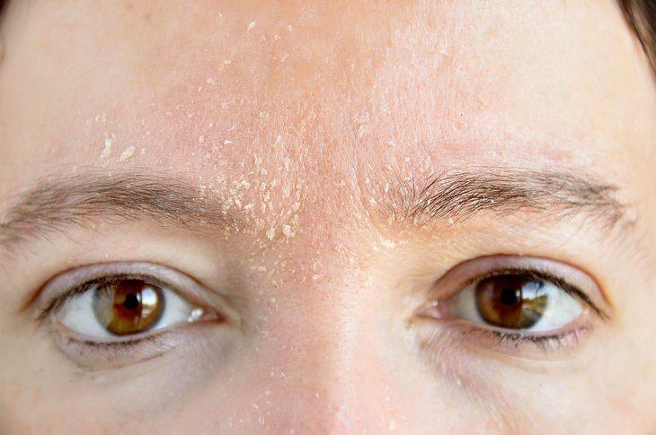 Woher Kommen Trockene Stellen Im Gesicht