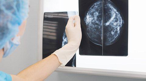 Kalkablagerungen in der Brust