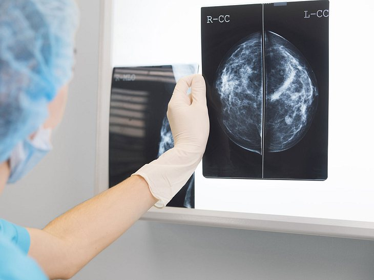 In den Wechseljahren kann es zu Kalkablagerungen in der Brust kommen.