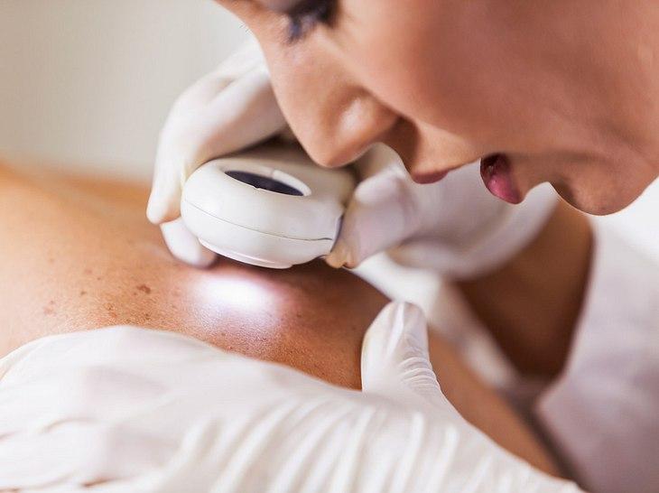 Weißer Hautkrebs: Auf diese Symptome sollten Sie achten