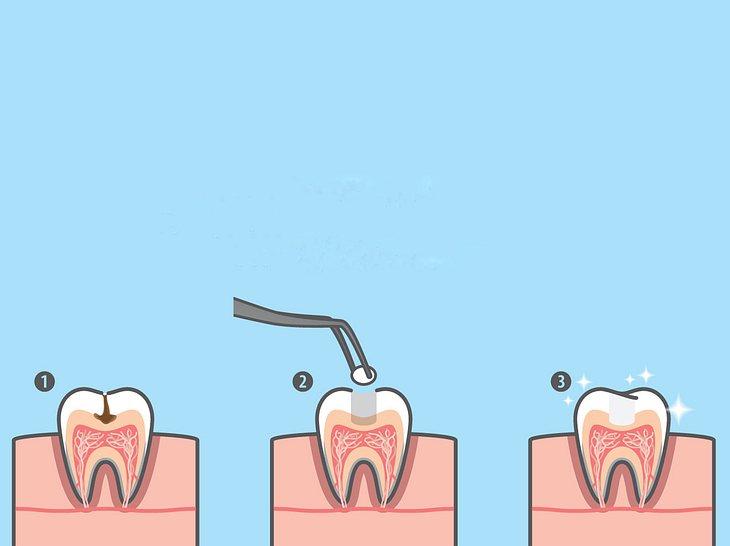 Welche Zahnfüllung für Sie geeignet ist.
