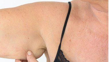 Winkearme: Was wirklich gegen schlaffe Haut am Oberarm hilft