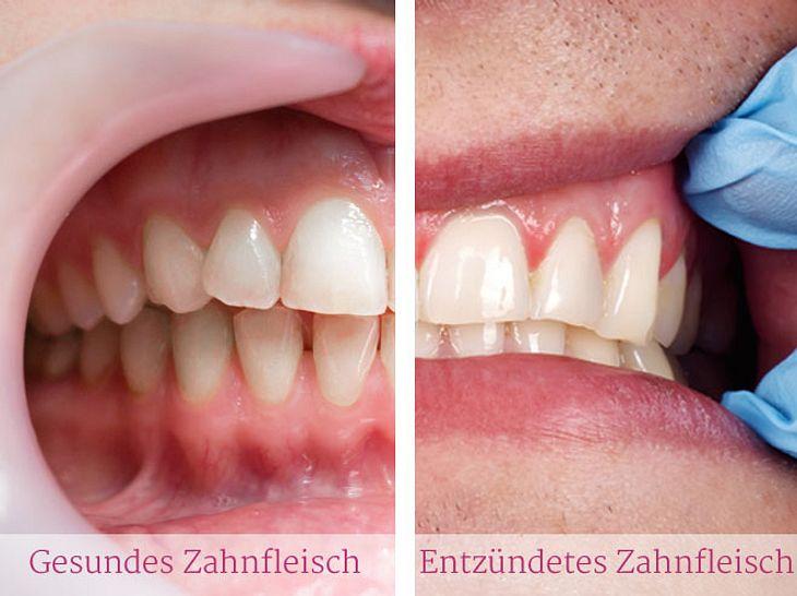 Der Unterschied zwischen gesundem und entzündetem Zahnfleisch.