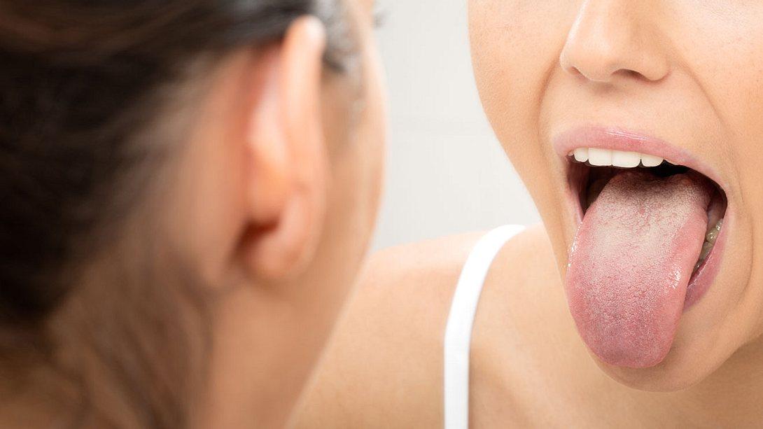 Zungenkrebs frühzeitig erkennen. - Foto: 4FR / iStock